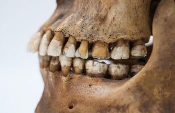 Fogmaradványok mesélnek az Alföld ősi lakosainak étkezési szokásairól